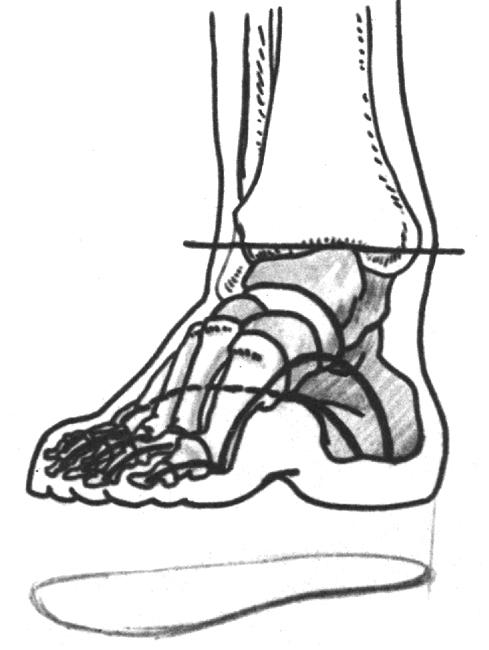 Схема строения стопы ноги и