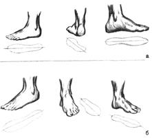 2. Последовательное изображение стопы: а) сбоку (I, II) и со стороны (III) б) 3/4 (I, II) и спереди (III)